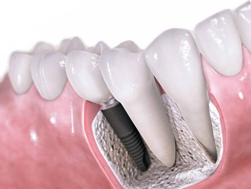 Имплантация зубов системой Nobel Biocare