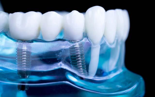 Имплантация зубов с помощью «Штрауман»